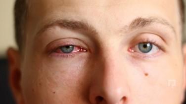 Göz Sulanması ve Bulanık Görme Nedenleri