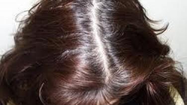 Saç Derisindeki Egzamaya Bitkisel Çözüm